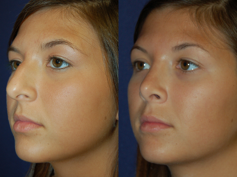 Before and After Rhinoplasty Results