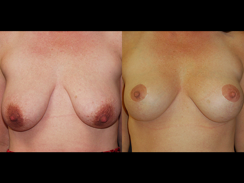 Before and After Breast Lift Results