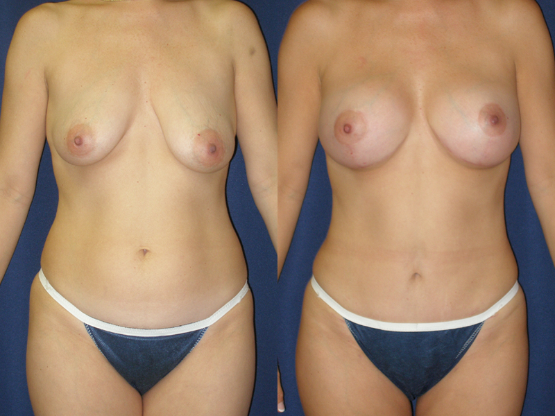 Before and After Breast Augmentation and Tummy Tuck Results