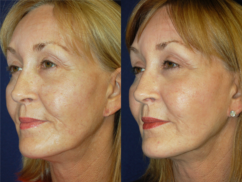 Before and After Facial Rejuvenation Results