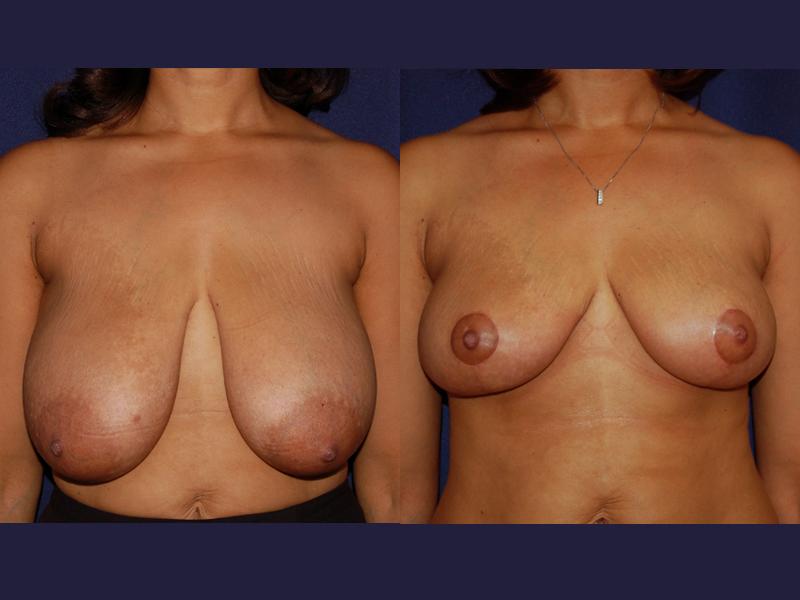 Find savings on magic boob job enhancers, silicone bra cups