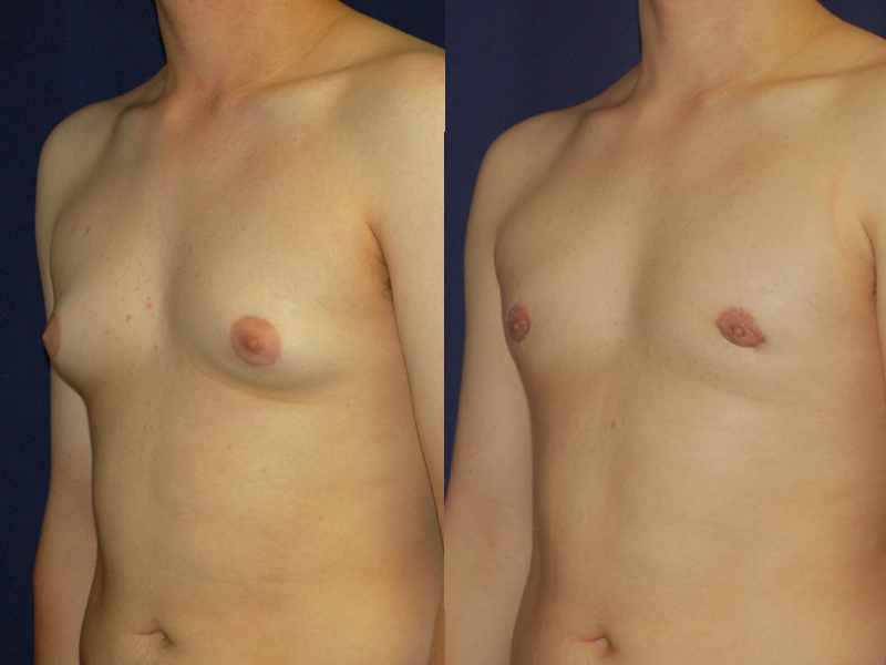 Before and After Gynecomastia Results