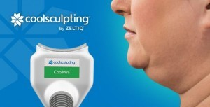 coolsculpting coolmini double chin removal