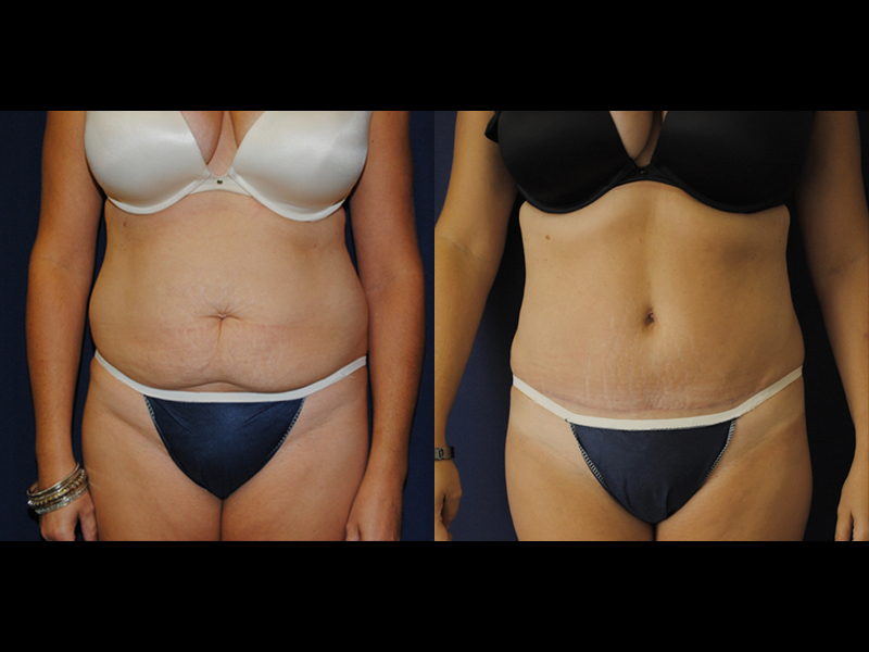 Tummy Tuck in Charlotte