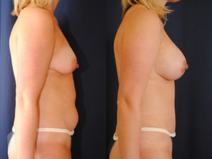 Before and After Breast Augmentation Lift Results