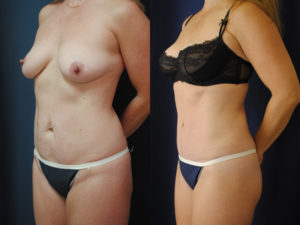 Before and After Tummy Tuck Results