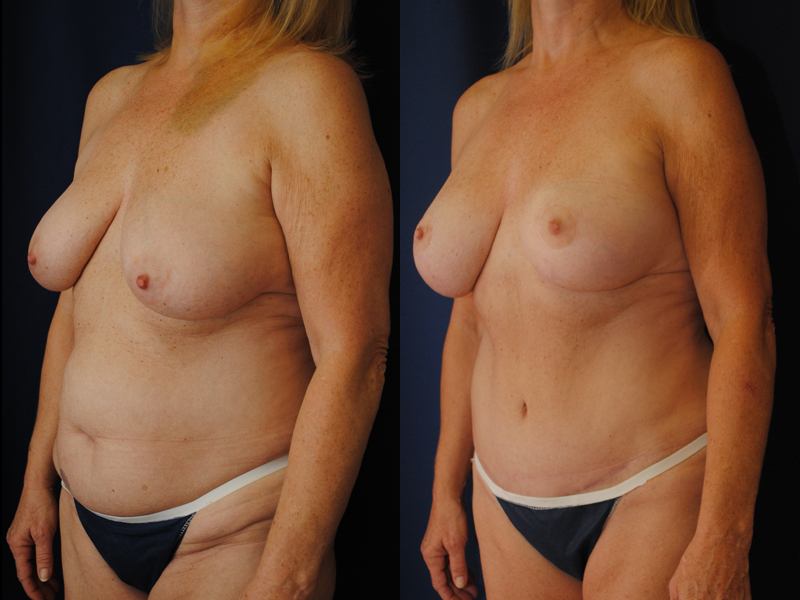Before and After Breast Augmentation and Lift Results