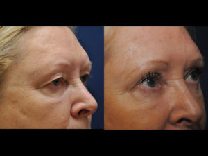 Before and After Eyelid Results