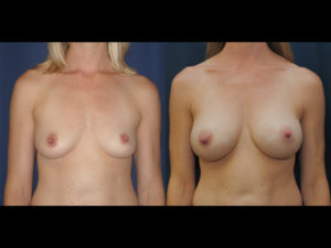Before and After Augmentation Results