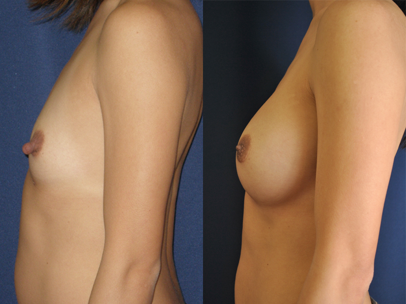 Before and After Breast Augmentation Results