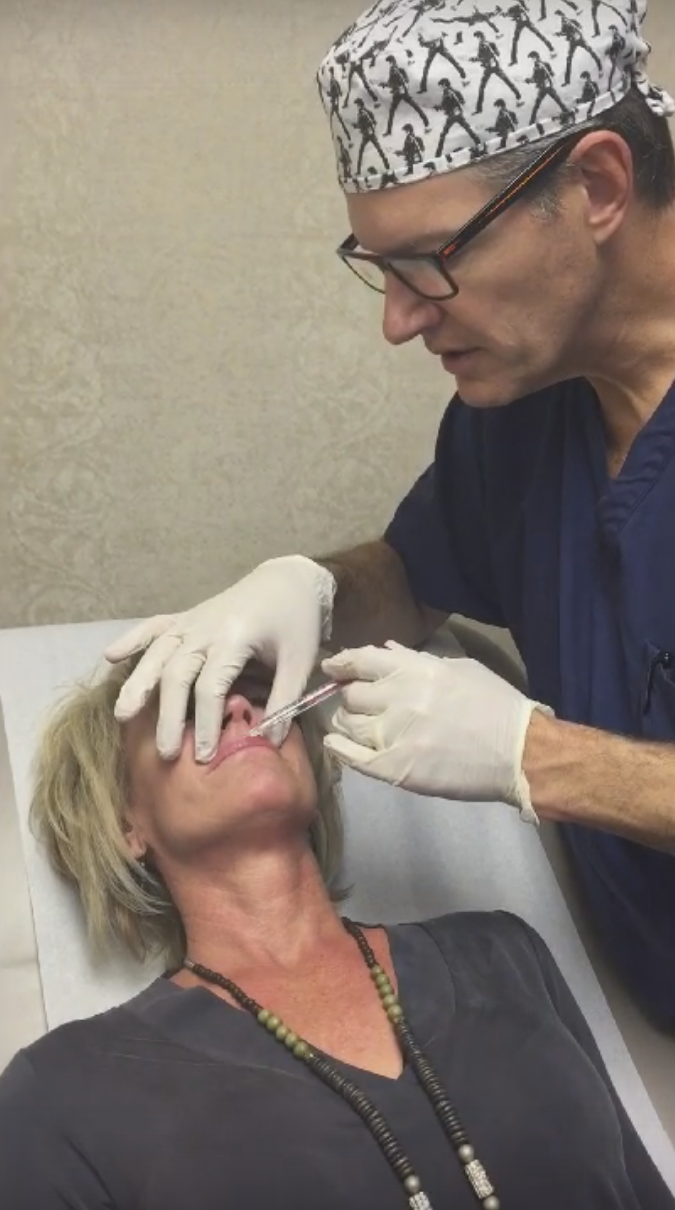 Volbella Filler Injected Dr Finnical