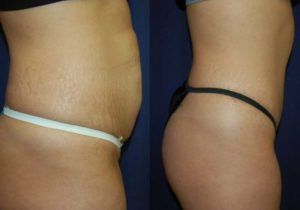 Before and After Abdominoplasty Results