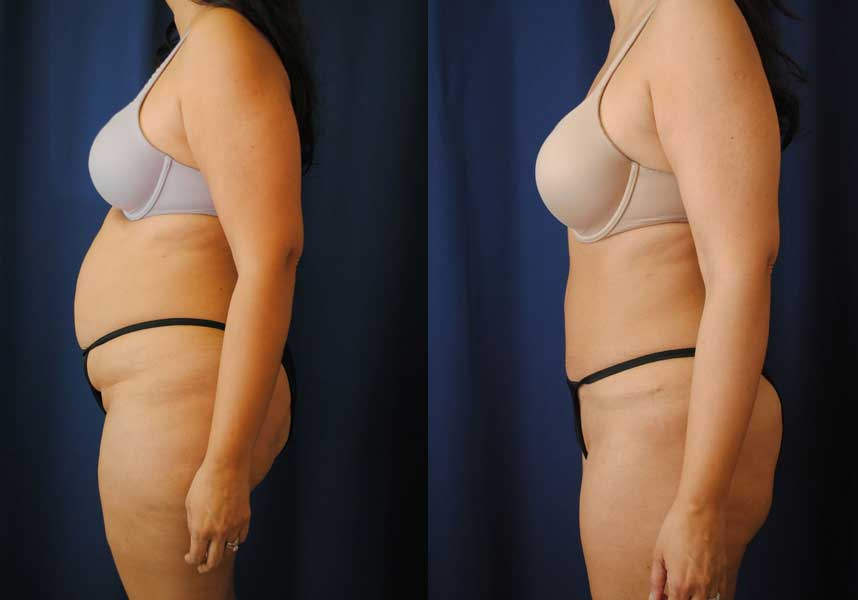 Before and After Liposuction Results