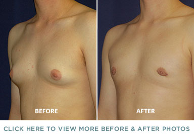 Male Breast Reduction - Charlotte Plastic Surgery