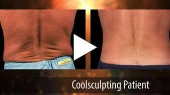 Video about Men's CoolSculpting