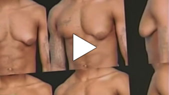 Video of Men's Breast Reduction