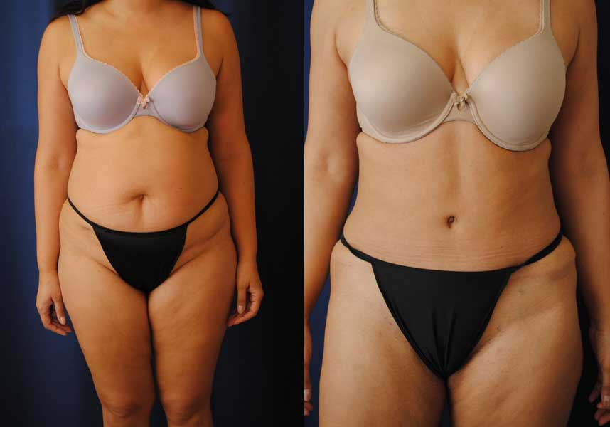 Breast implants by charlotte nc dr