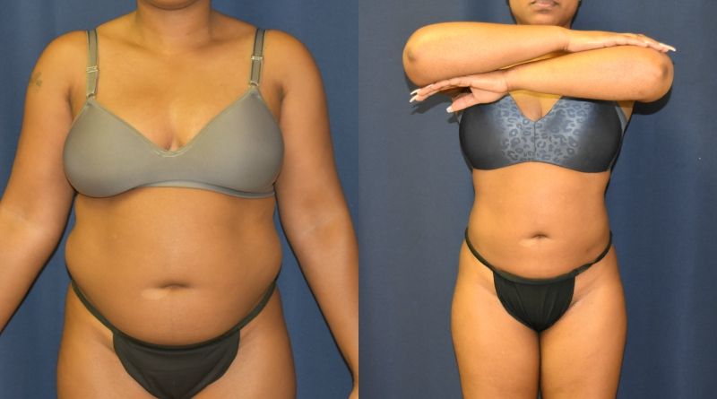 Before and After Body Contouring Results