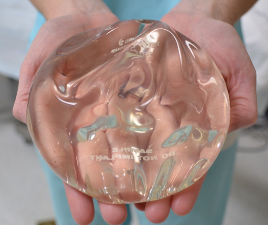 The plastic surgery trends for breast implants are revolving around cohesive gel implants.