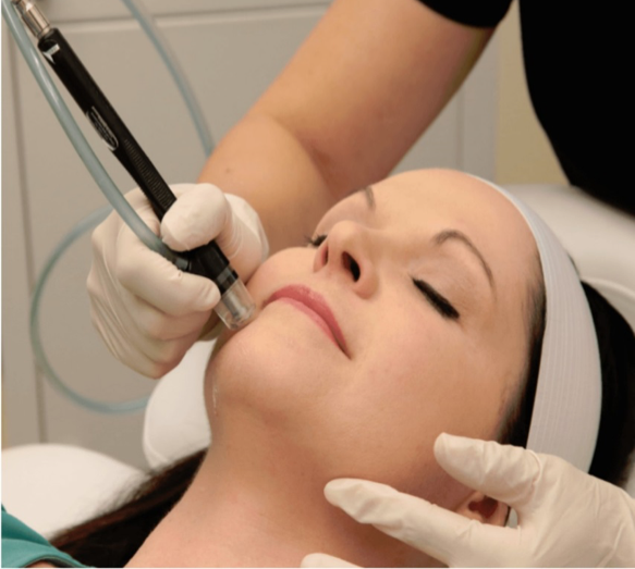 Silkpeel dermalinfusion is the latest plastic surgery trend for deep skin cleaning.
