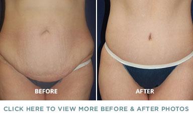 Body Contouring Charlotte Plastic Surgery