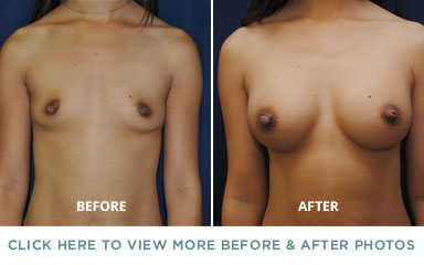 Breast Augmentation – Charlotte Plastic Surgery