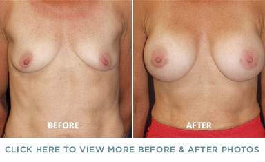 Breast Augmentation Surgery – Charlotte Plastic Surgery