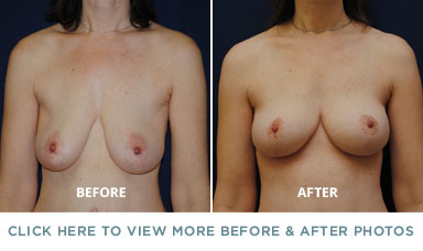 Breast Lift – Charlotte Plastic Surgery