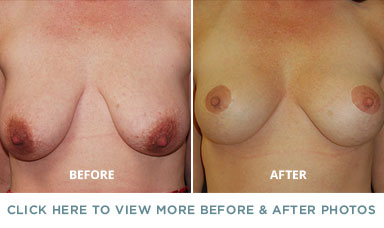 Breast Lift Surgery – Charlotte Plastic Surgery