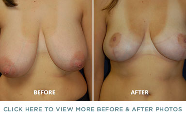 Breast Reduction – Charlotte Plastic Surgery