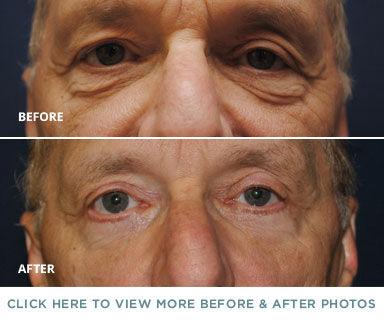 Eyelid Surgery Before & After – Charlotte Plastic Surgery