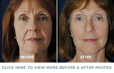 Facelift Surgery – Charlotte Plastic Surgery