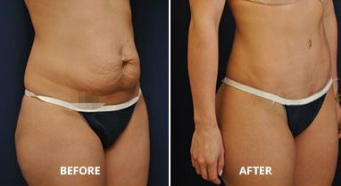 plastic surgery abdominoplasty