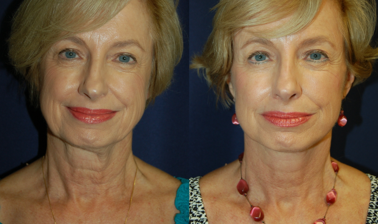 Before and After Facelift Results