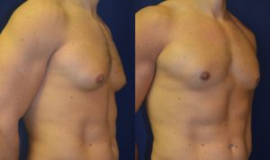 Before and After Breast Reduction Results