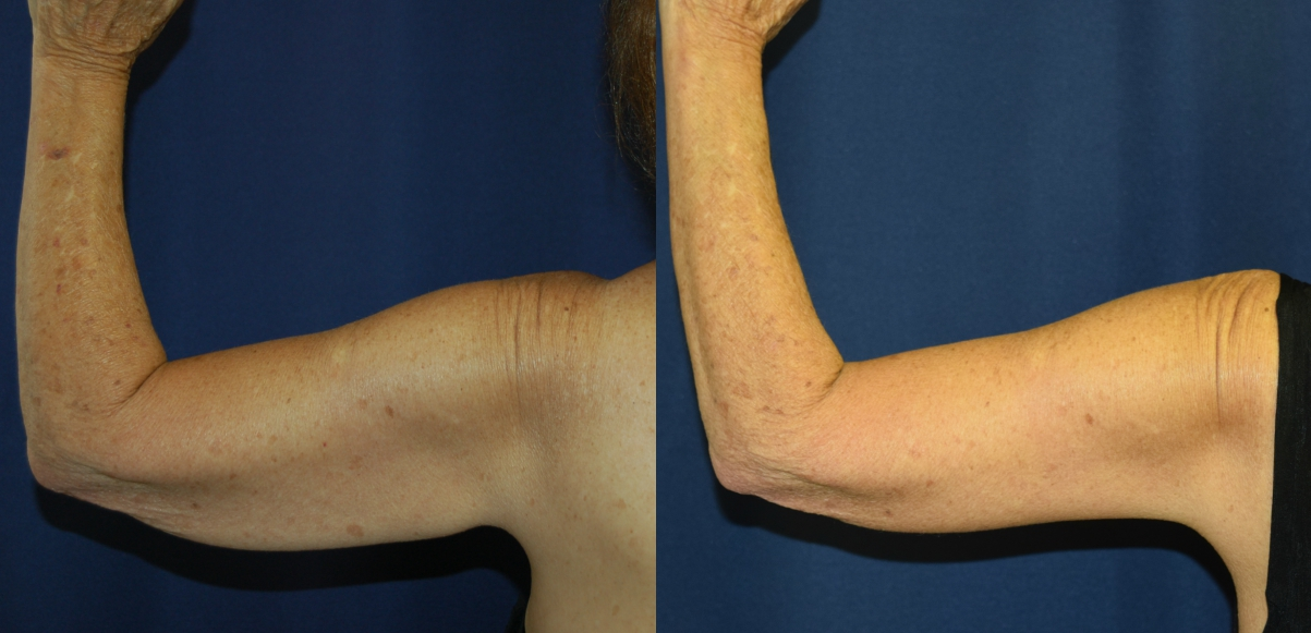 Before and After Brachioplasty Results