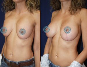 Avoid Bad Breast Implants By Consulting Charlotte Plastic Surgery