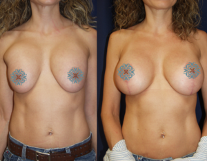 Contact Us to Make Sure You Avoid Bad Breast Implants