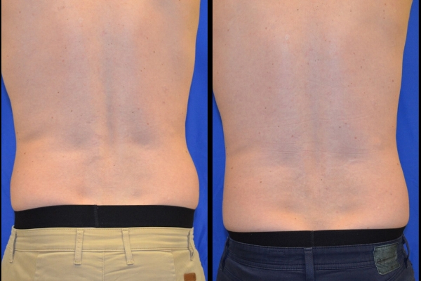 CoolSculpting - Before & After Profile