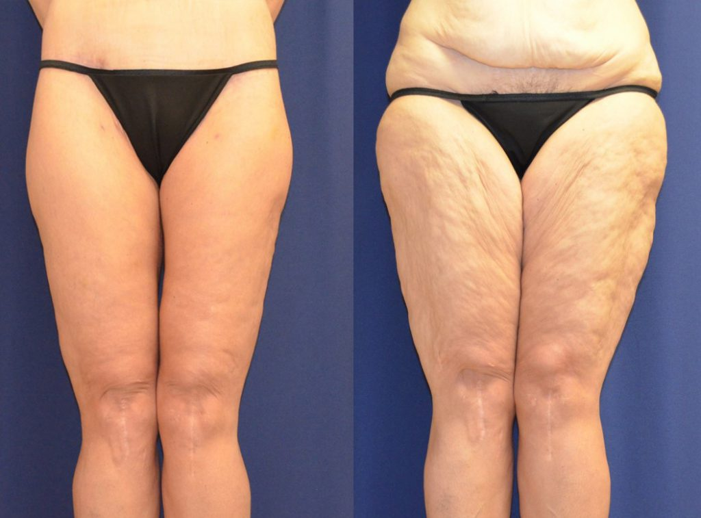 Coolsculpting Vs Liposuction Which One Is Best For You