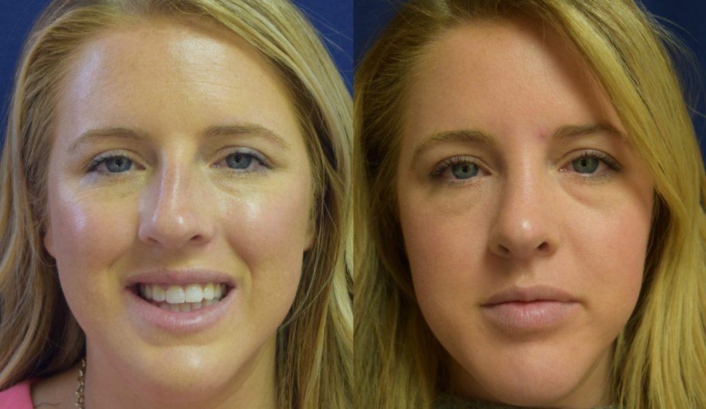 Nose Job Recovery