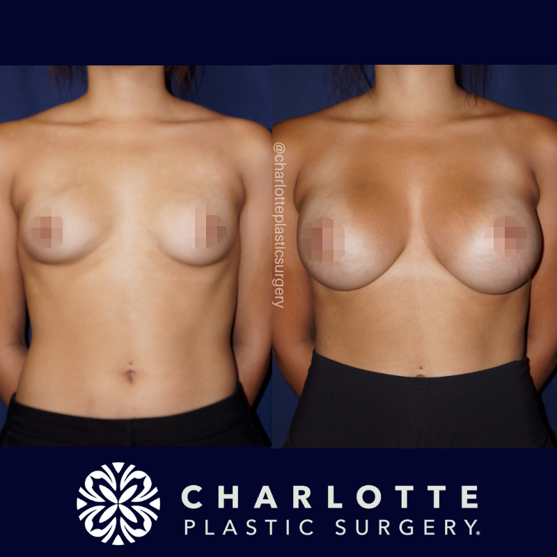 type of breast surgery