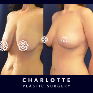 breast reduction surgery candidate