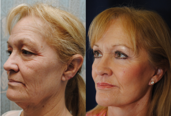 guide to facelift