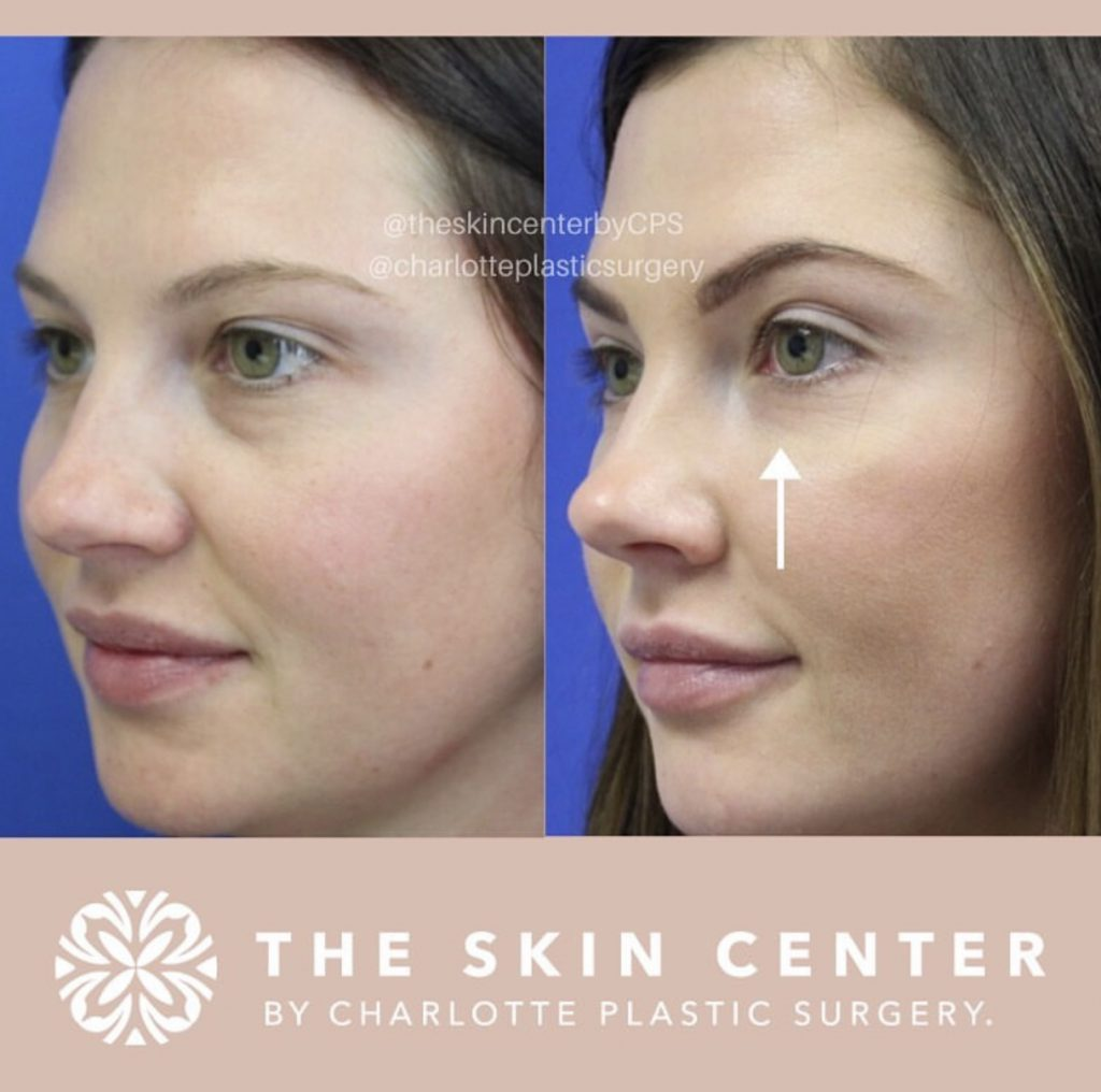 removing under eye bags with filler treatment